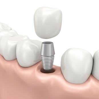 Advantages Of Excellent Dental Bridge Work