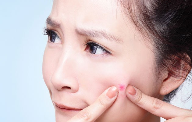 prevention-is-the-best-acne-scar-treatment