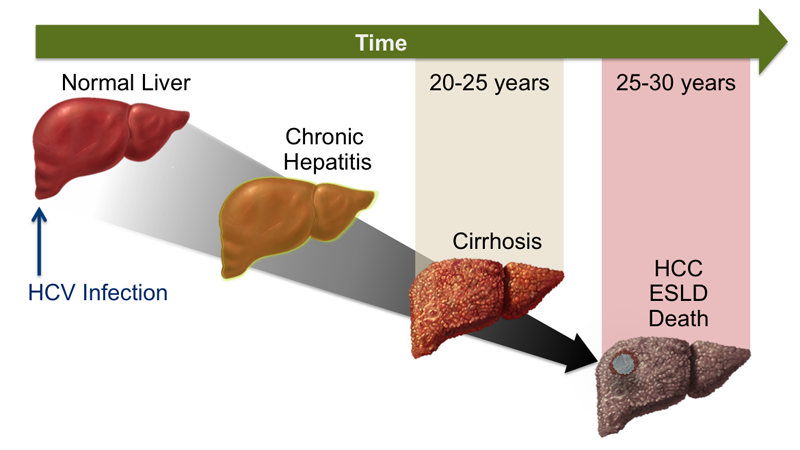 Know More About Chronic Hepatitis C and Chronic Hepatitis B