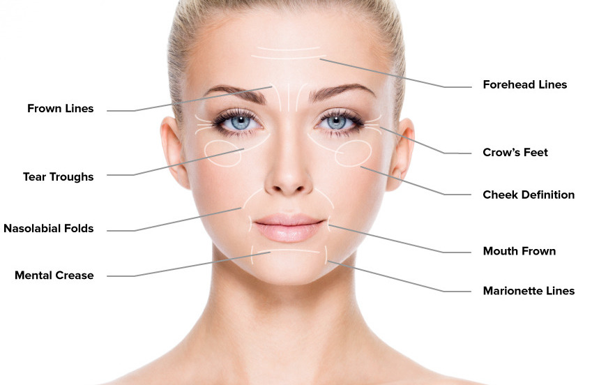 What Are The Major Causes of Wrinkles?