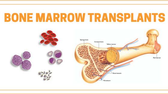 Bone Marrow Transplantation and Treatment