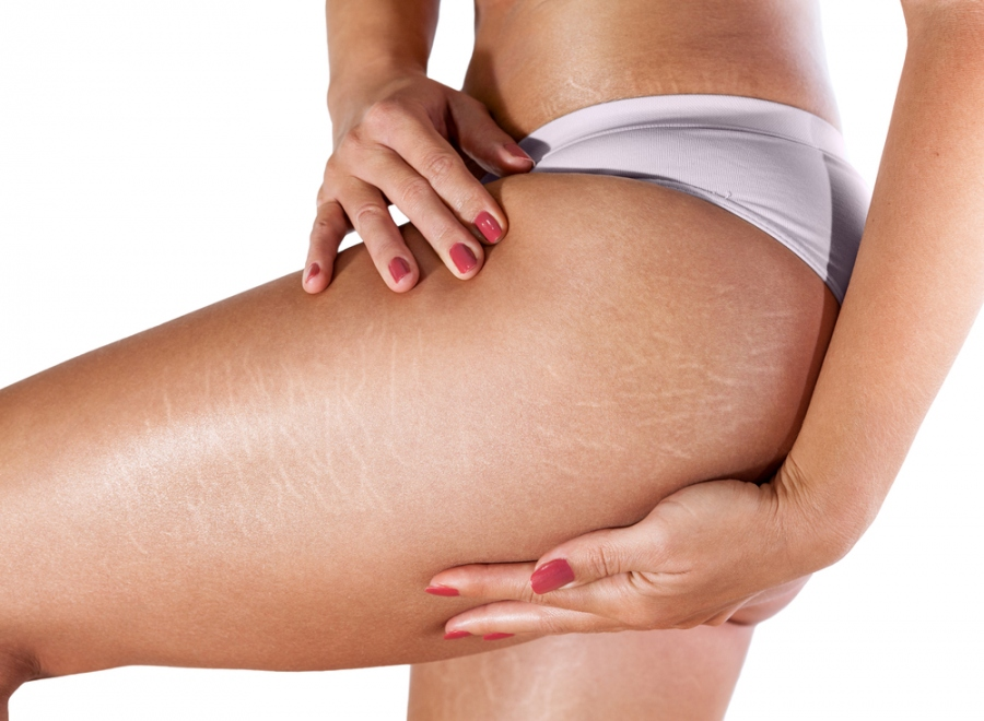 6 Natural Ways To Reduce Stretch Marks